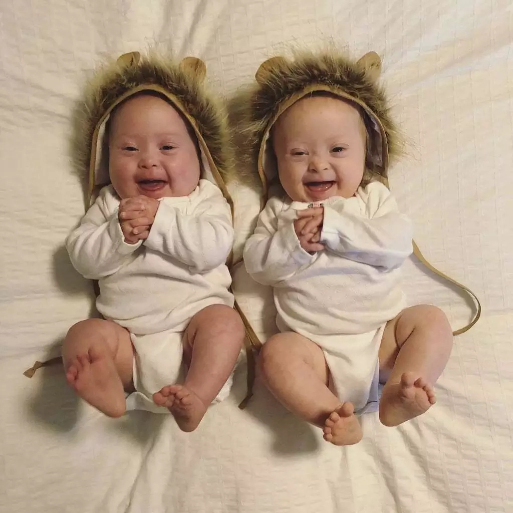 How to Give Birth to Twins